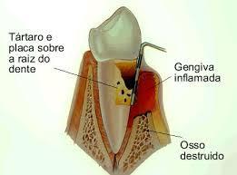 Enfermedades periodontales deben tener misma atención médica que las crónico-degenerativas